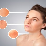 Know The Reasons for Occurrence of Photoaging