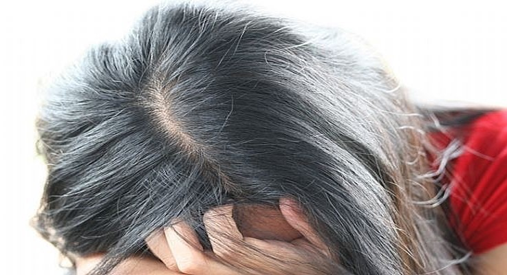 Common Hair problems in Women & Nutrient Rich Remedies